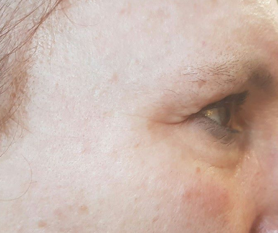 One Week After After Eye Rejuvenation Treatments