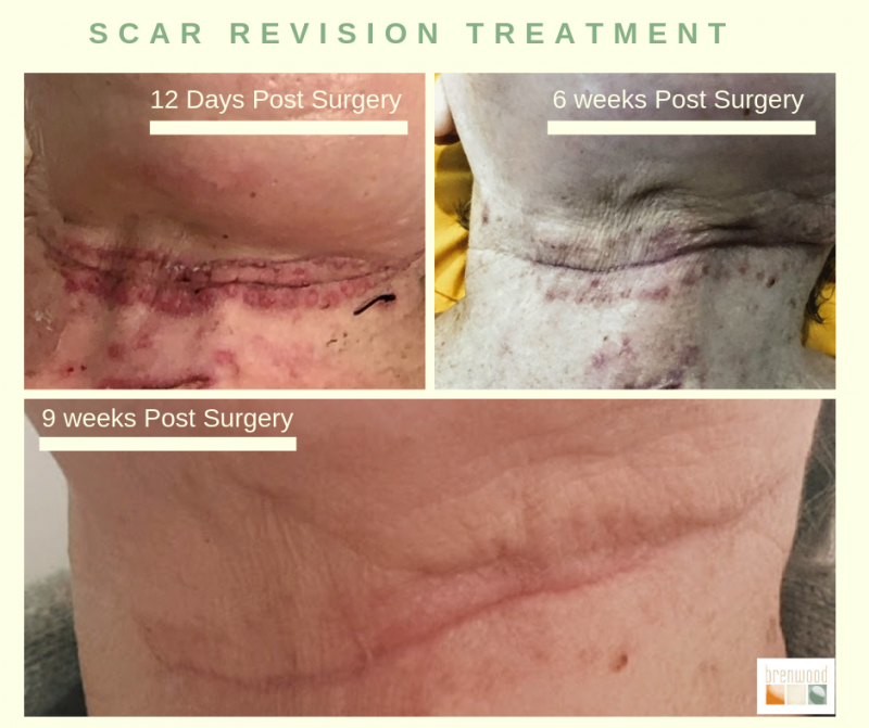 Scar Revision Treatment